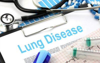 The Lung Microbiome May Affect Lung Cancer Pathogenesis and Prognosis