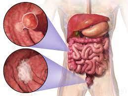 Uso de antibióticos y riesgo posterior de cáncer colorrectal: Un estudio nacional sueco basado en la población